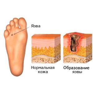 saharniy-diabet-i-nogi