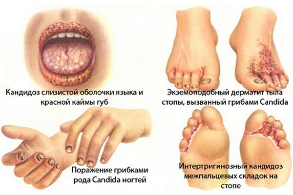 simptomi-i-priznaki-diabeta