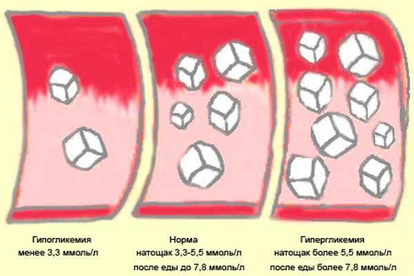 simptomi-i-priznaki