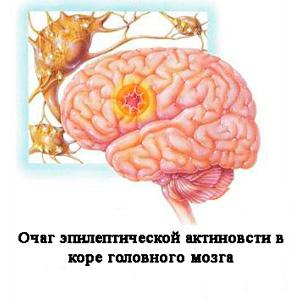 soputsvuyushie-zabolevaniya-pri-diabete
