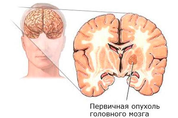 epilepsiya-pri-saharnom-diabete
