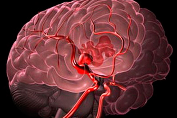 epilepsiya-pri-saharnom-diabete3